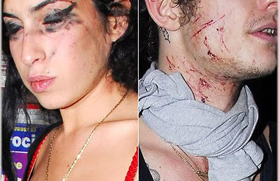 Amy Winehouse In Bloody Brawl With Husband
