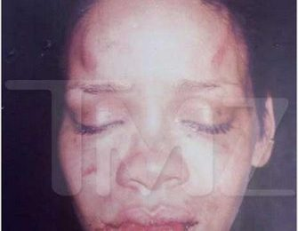 Police Pic: Rihanna After Chris Brown 'Assault'