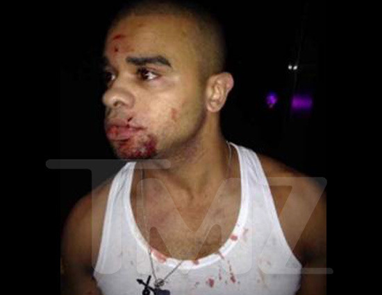 raz b incident Report: Raz B Comatose In Chinese Hospital After Club Attack