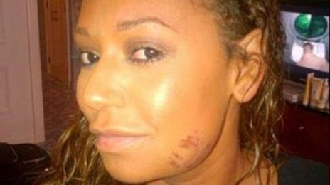 Mel B Granted Restraining Order Against Husband After Shocking Abuse Allegations