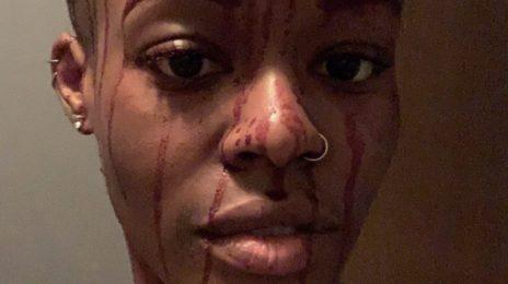 Azealia Banks Shares Disturbing Selfie Of Herself Covered In Blood