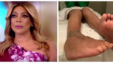 Wendy Williams Reveals Extent Of Lymphedema Battle